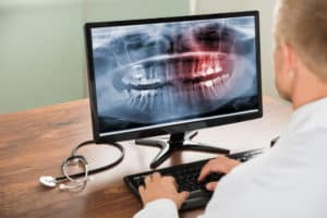 3 Important Advantages of Digital X-Rays