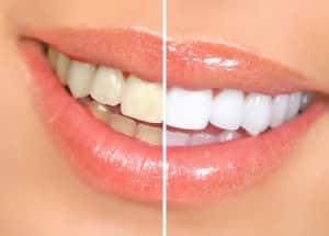 kobak teeth whitening (2)