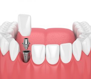 syosset dental implant placement