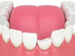 syosset full mouth rehabilitation