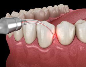 syosset dental lasers