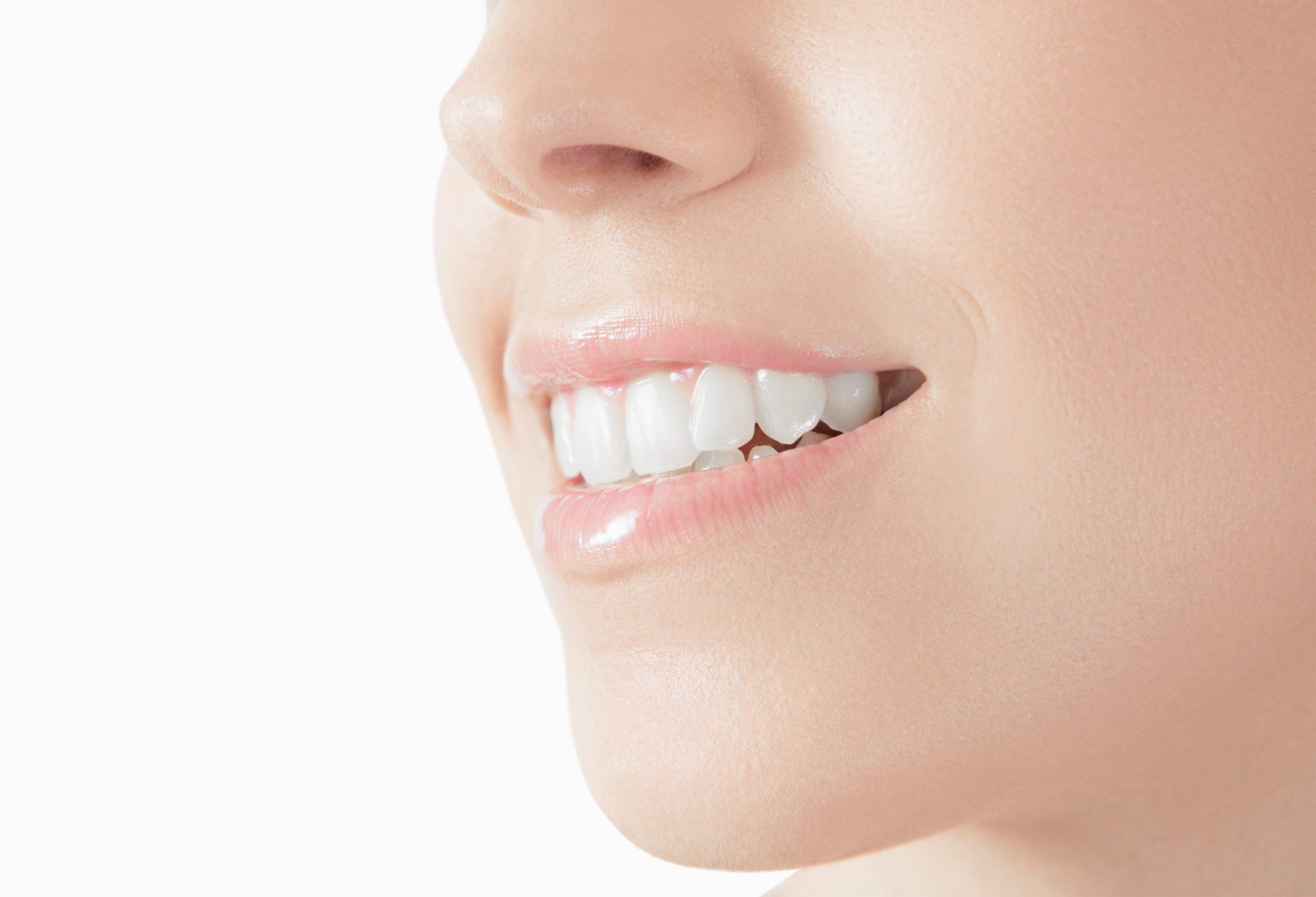 syosset dental bonding