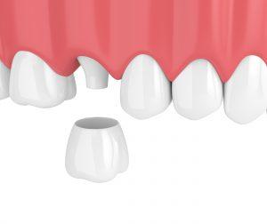 syosset dental crowns