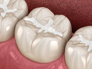 syosset dental fillings