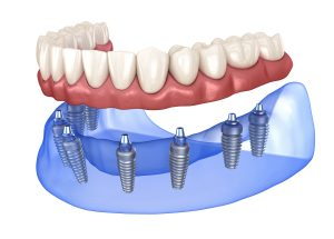 syosset dental implants