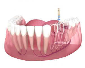 syosset root canal