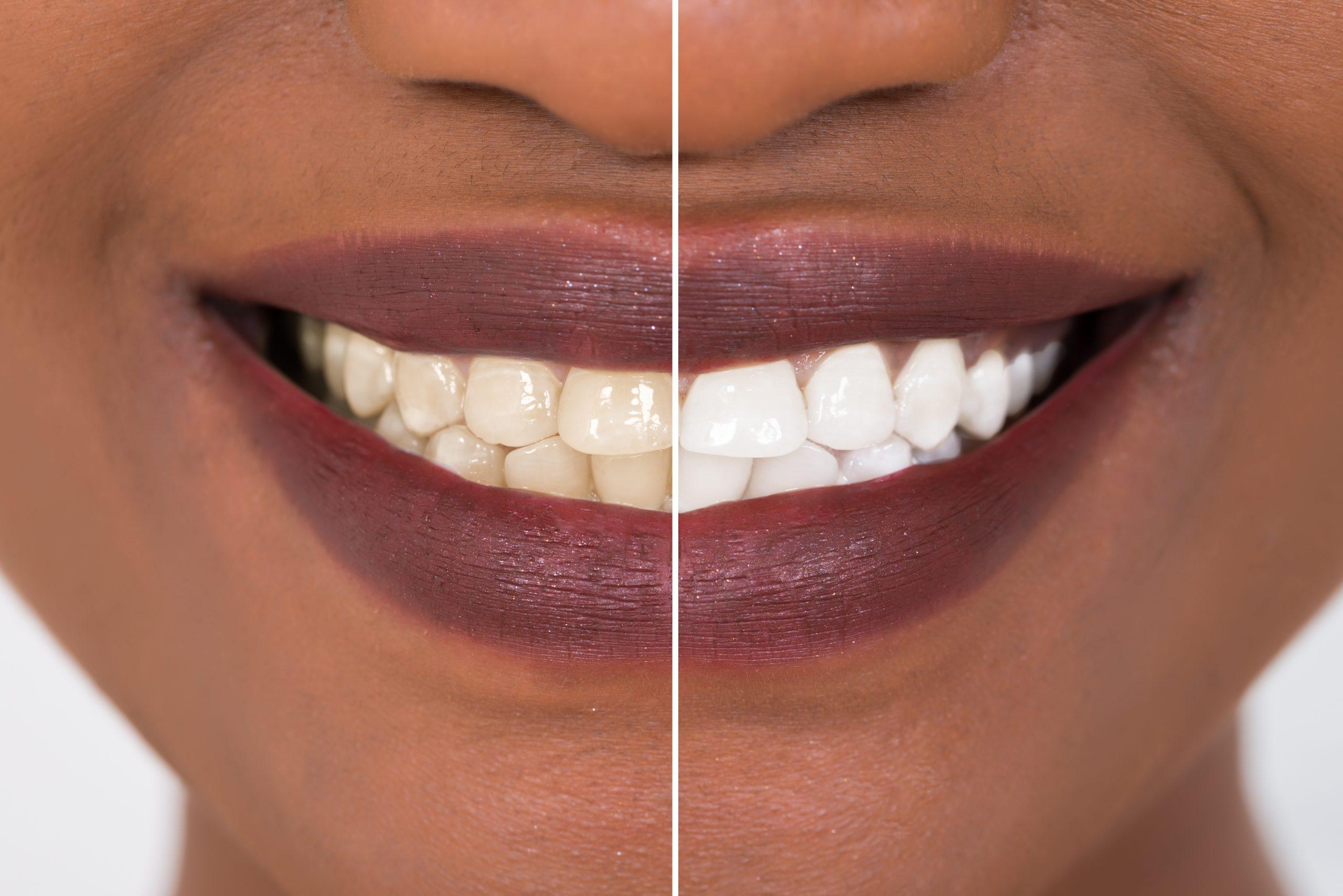 syosset teeth whitening