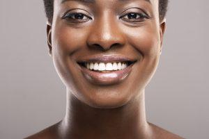 syosset gum contouring treatment